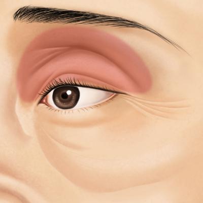 上まぶたのくぼみ | 美容整形・美容外科のサフォクリニック